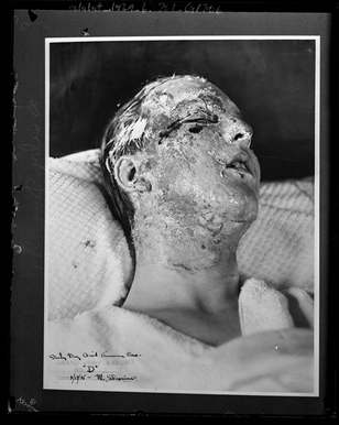 Copy of grand jury exhibit photograph of Darby Day Jr.'s facial acid burns, Los Angeles, Calif., 1925 [Photo courtesy UCLA archive.]